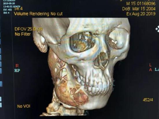 """15岁男孩牙疼一年多 脸部骨头被""""吃""""掉一半(图)"""